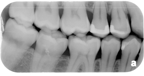 healed cavity showing cross section of tooth enamel