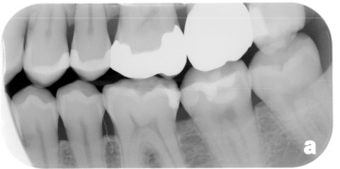 Regrown Tooth Enamel Healing Cavities